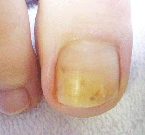 Discoloured Toenail