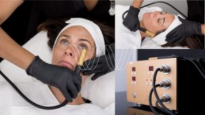 CollagenWave equipment