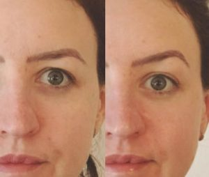 Before and after - brow lift