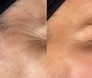 Before and After - crows feet