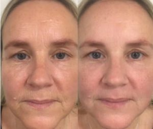 Before and After - fine lines