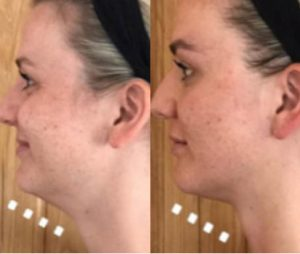 Before and after - chin tightening