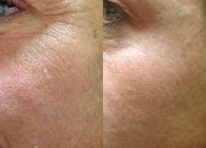 Before and after - 3 treatments