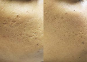 Before and after - 2 treatments