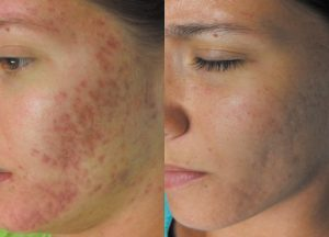 Before and after - 6 treatments